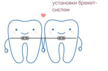 Підготовка до лікування зубів брекет-системами